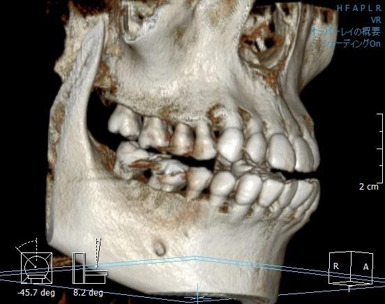 CT装置 [撮影画像1]