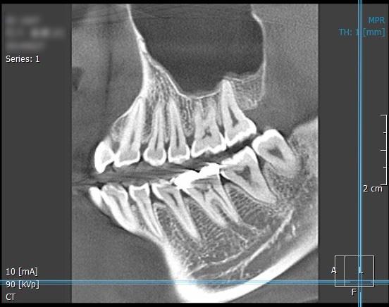CT装置 [撮影画像2]
